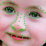 face-scanning-ai-identifies-rare-genetic-disorders