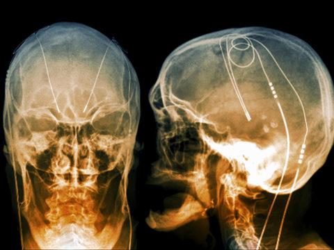 how-do-neural-implants-work?