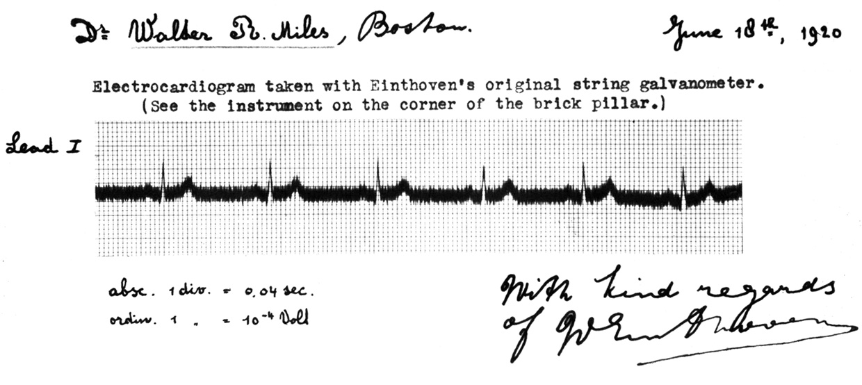 Early Einthoven Electrocardiogram, 1903