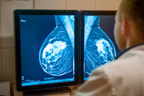 new-x-ray-scanner-could-improve-breast-cancer-surgery