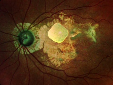 neuroscientists-unveil-tech-for-the-vision-impaired:-bionic-eyes,-textured-tablets-and-more