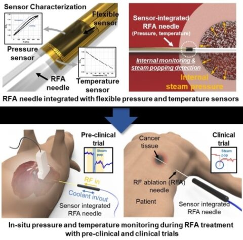 sensor-integrated-into-rfa-needle-offers-surgical-accuracy